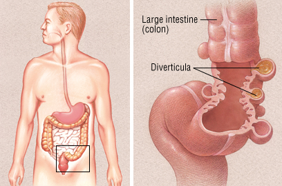 Diverticular Disease Part I Causes Symptoms And